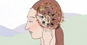 Close-up Illustration of a portrait of a woman with Tinnitus