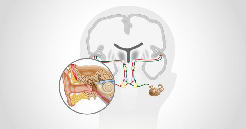 Illustration of tinnitus management