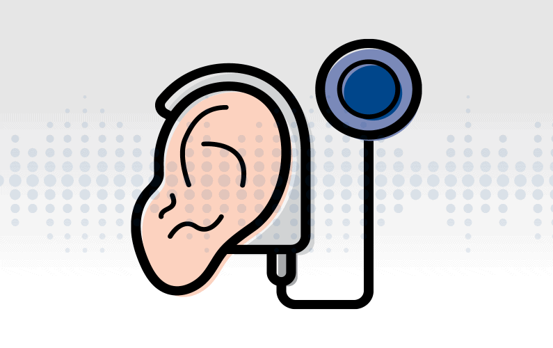 Illustration of an isolated cochlear implant
