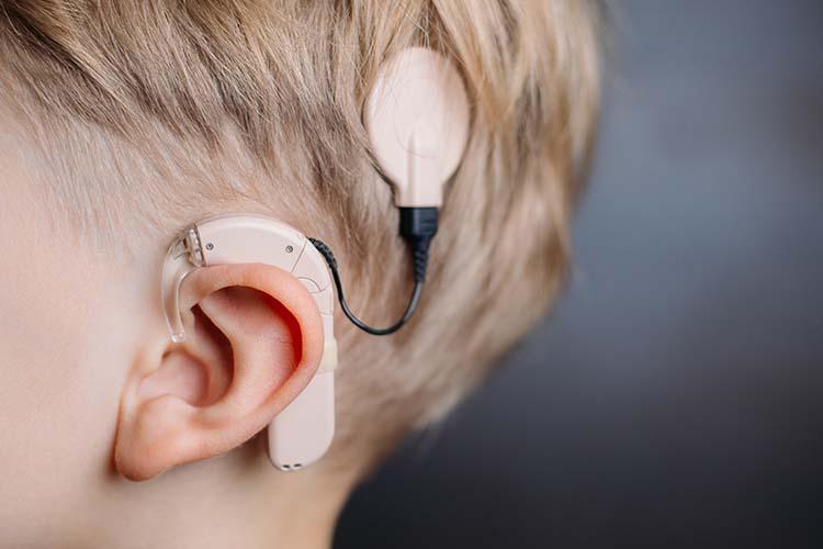 International_Cochlear_Implant_Day-Website-750x500-min