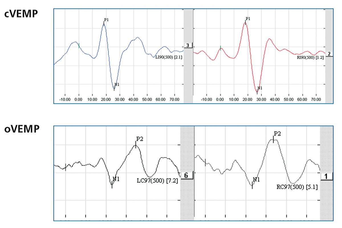 FIGURE 7. An example of normal VEMP findings for vestibular migraine.