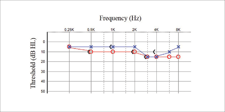 Figure 1. Audiometric findings completed at initial evaluation.