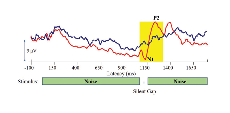 Figure 2. Electrophysiological responses to a gaps-in-noise stimulus containing a 20 msec silent gap embedded within a broadband noise