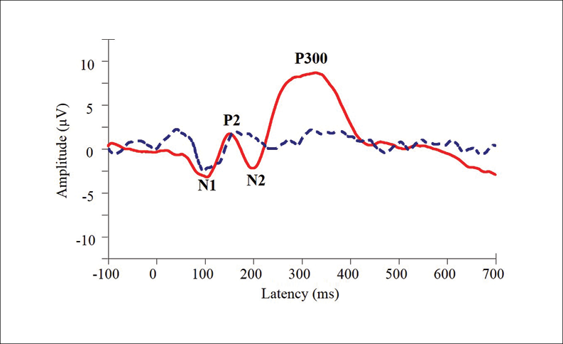 Figure 3. Electrophysiological responses to the rare stimulus of a P300 oddball paradigm