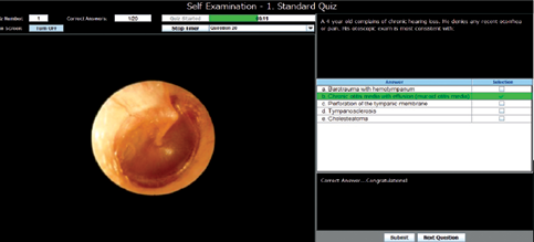 A close-up photo of a self-assessment quiz for middle ear conditions using the OtoSim otoscopy trainer.