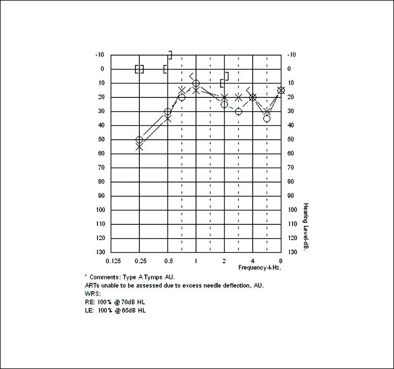 FIGURE 4. Final diagnostic audiogram.