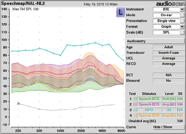 FIGURE 4. REAR (green, purple), REUR (orange), and MPO (teal) curves for the Bose Hearphone device using the Audioscan Verifit REM system and the ISTS (REAR, REUR) and swept sinusoid (MPO) stimuli.
